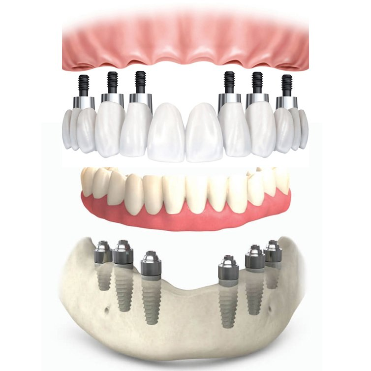 all-on-six-dental-implants-in-mexico-by-dr-moguel
