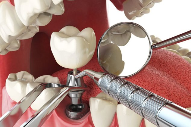 individual-dental-implant-mexico
