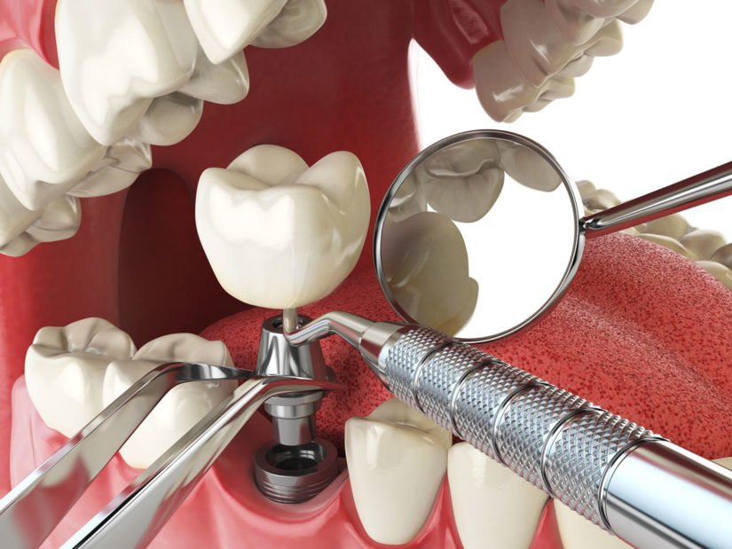 individual-dental-implants-in-mexico