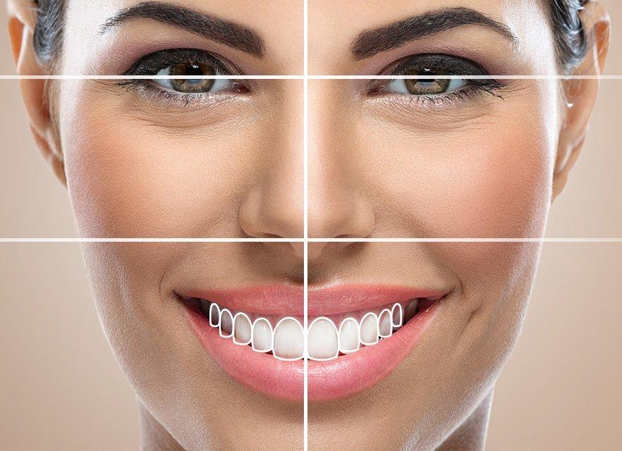 smile-design-dental-treatment-mexico