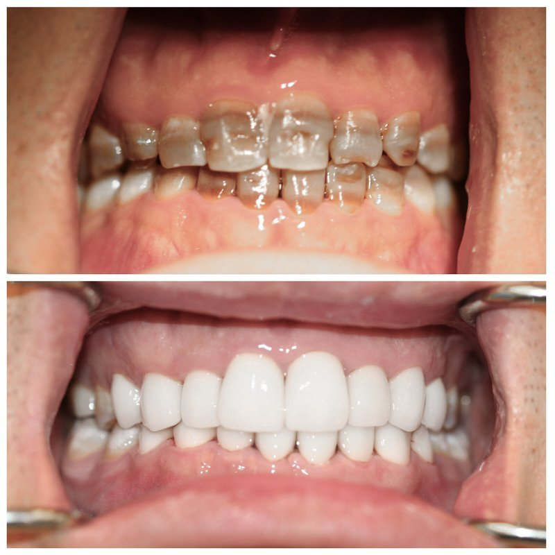 smile-design-makeover-before-and-after