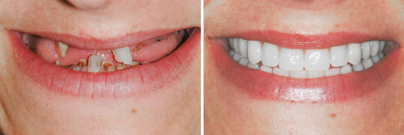 smile-makeover-dental-implants-before-and-after