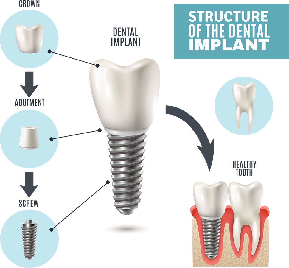 dental implants treatment in mexico