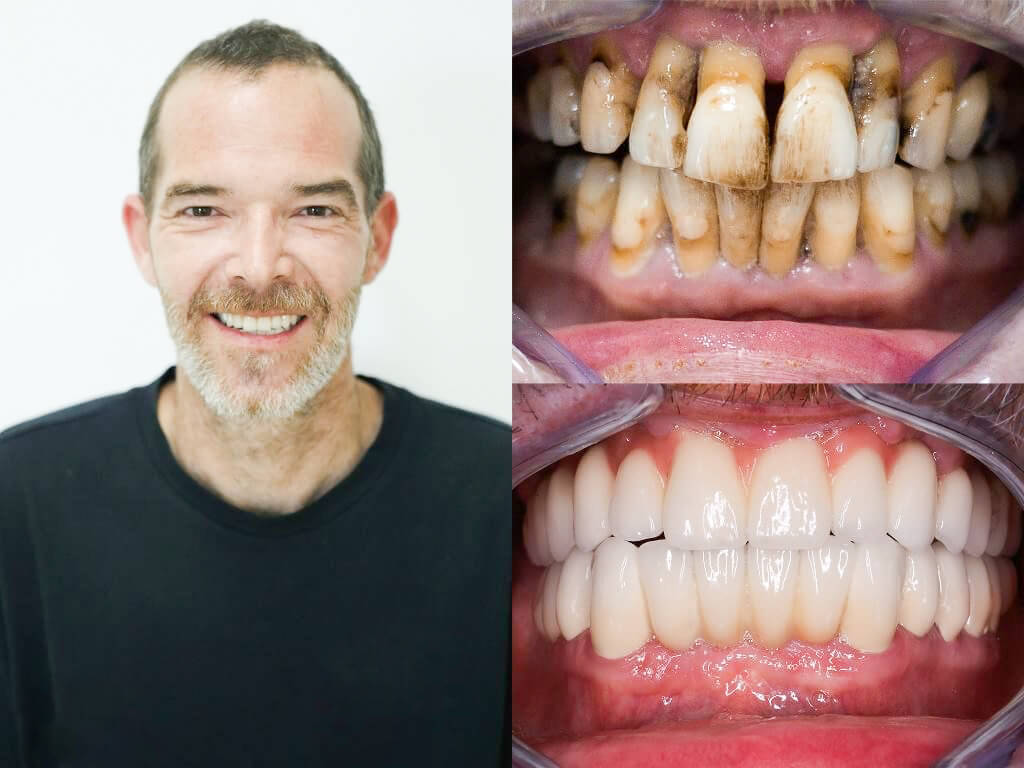 Full Mouth Restoration Mexico