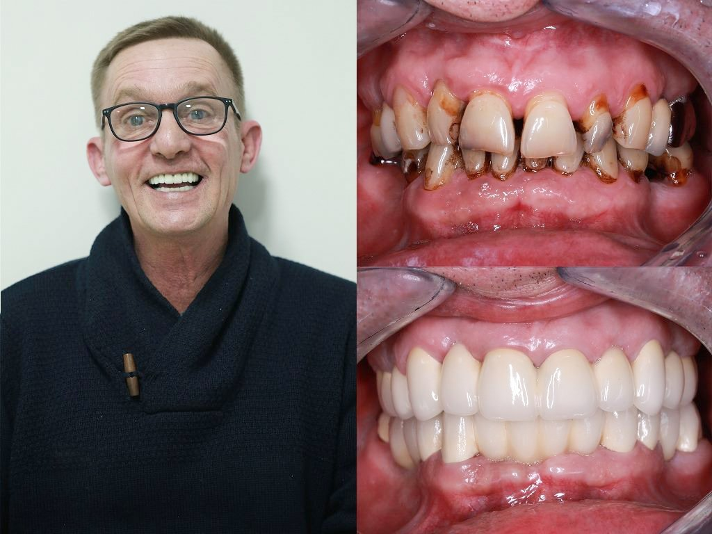 3 on 6 dental implants before and after