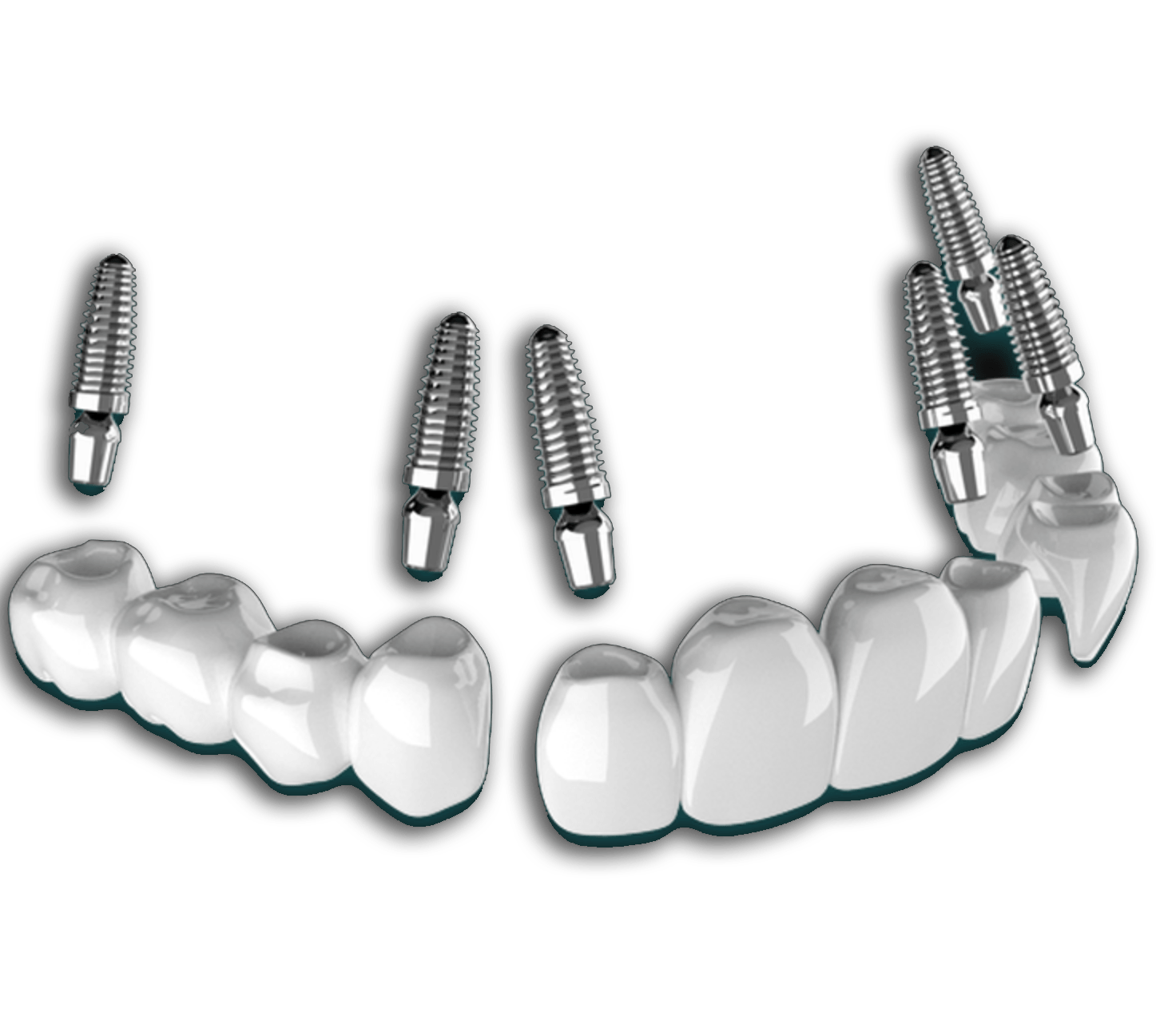 3 on 6 dental implants in mexico by dr moguel