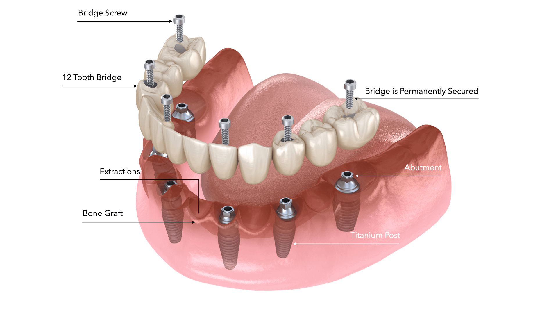 all on 6 dental implant cost mexico