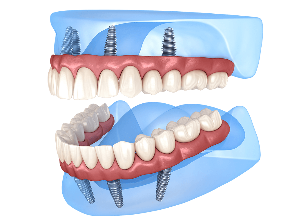 All on Four Dental Implants in Mexico