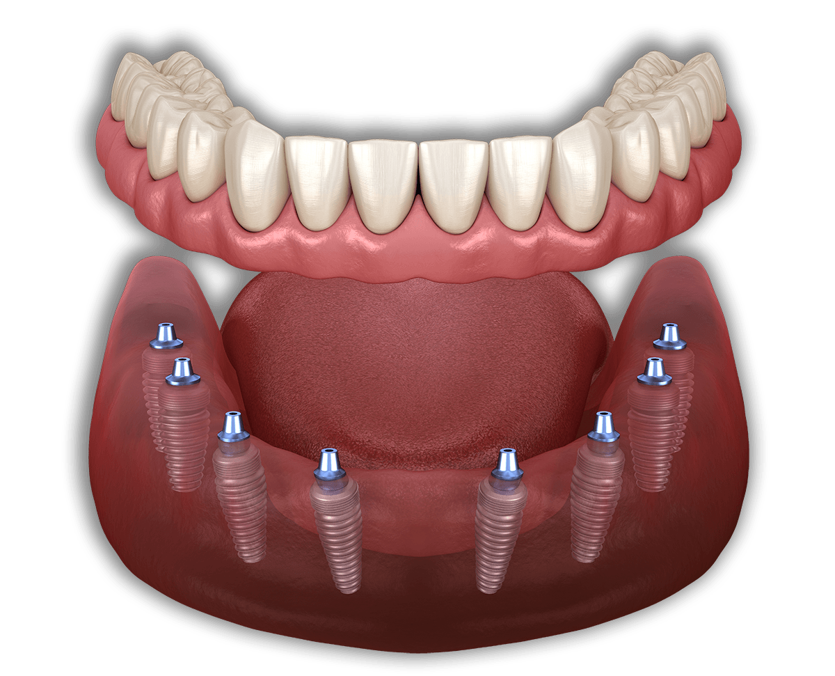 all on 8 dental implants mexico