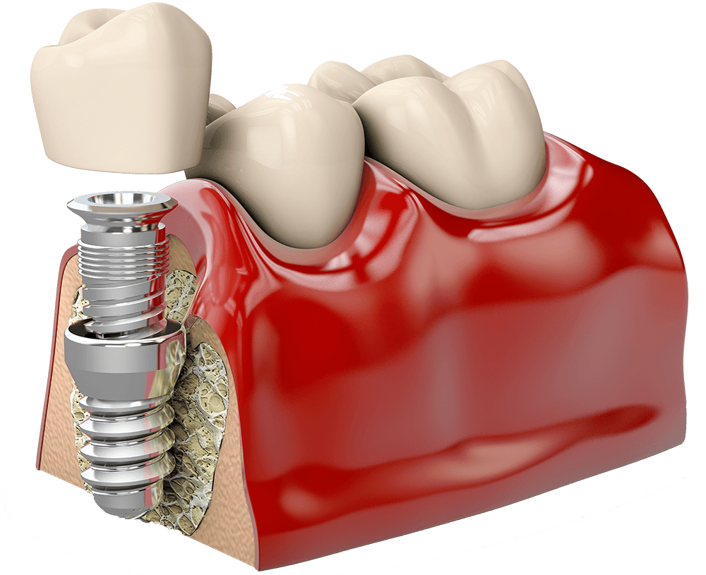 dental implants in mexico
