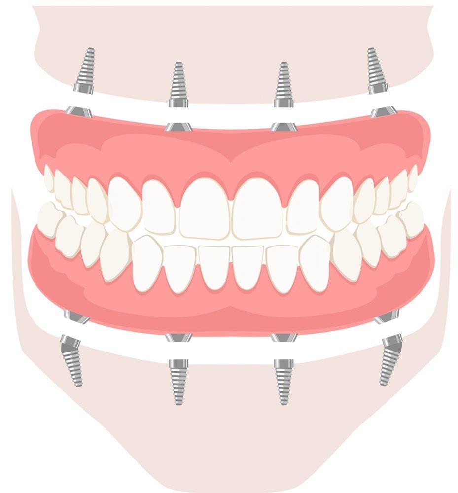mexico dental implants